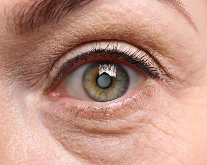 Cataracts Atlantic Eye Center In New Jersey Nj