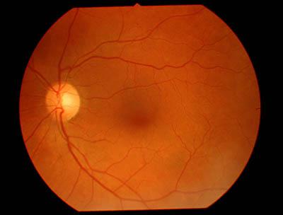 retinal disease